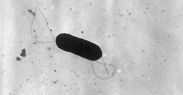 listeria monocytogenes bacteria